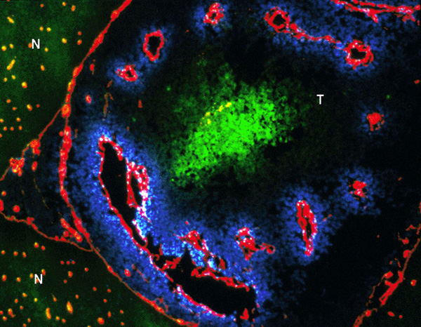 Hypoxia (Green) in rat brain tumor.