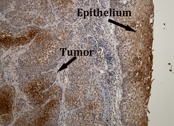 Hypoxia in human tumor and normal epithelia.